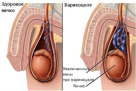 Как часто можно сдавать кровь из вены при беременности